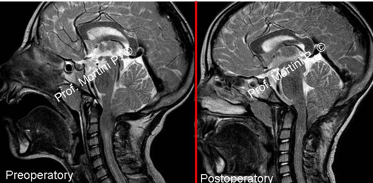 chiari malformation A chiari malformation is a problem in which a part of the brain at the rear of the  skull bulges through a normal opening (foramen magnum) in the skull where it.