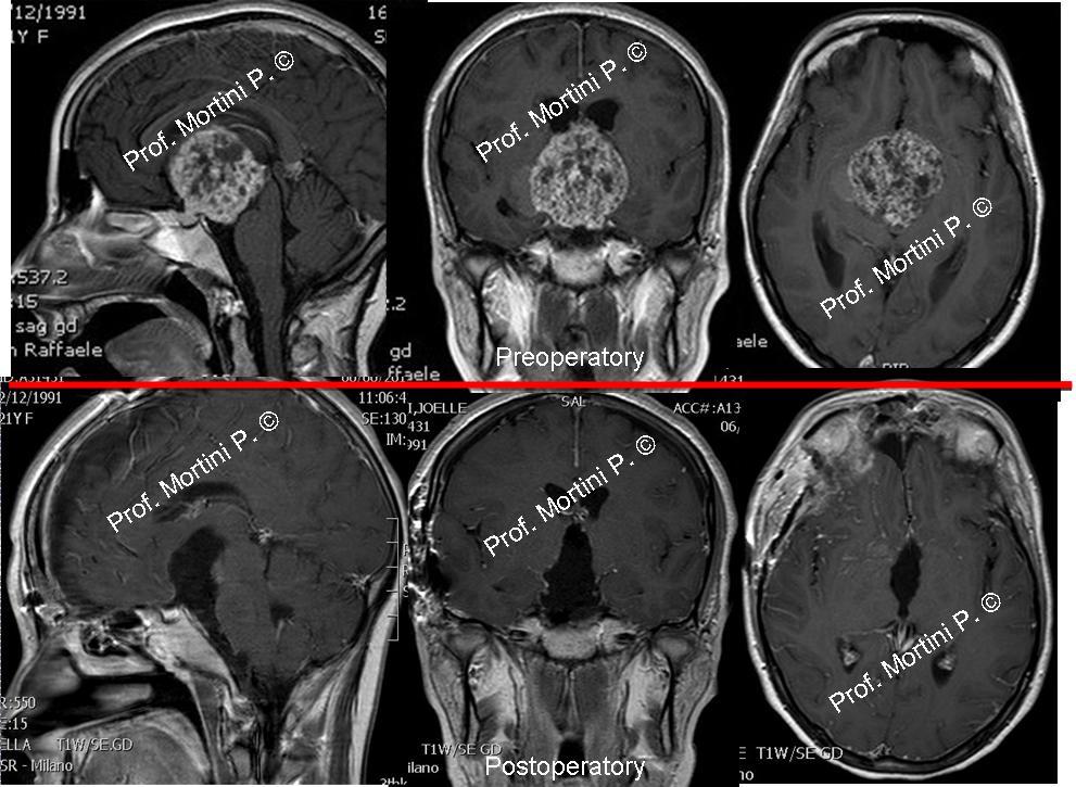 Craniopharyngiomas