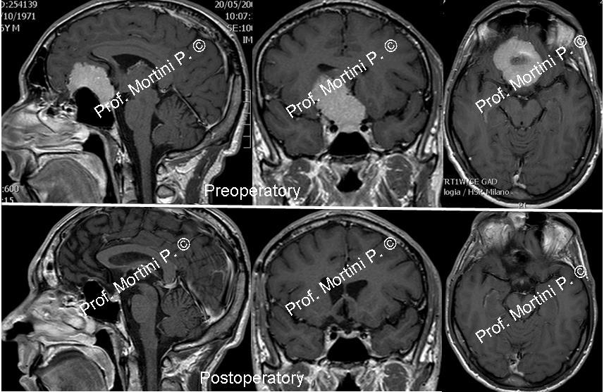 Skull base tumors