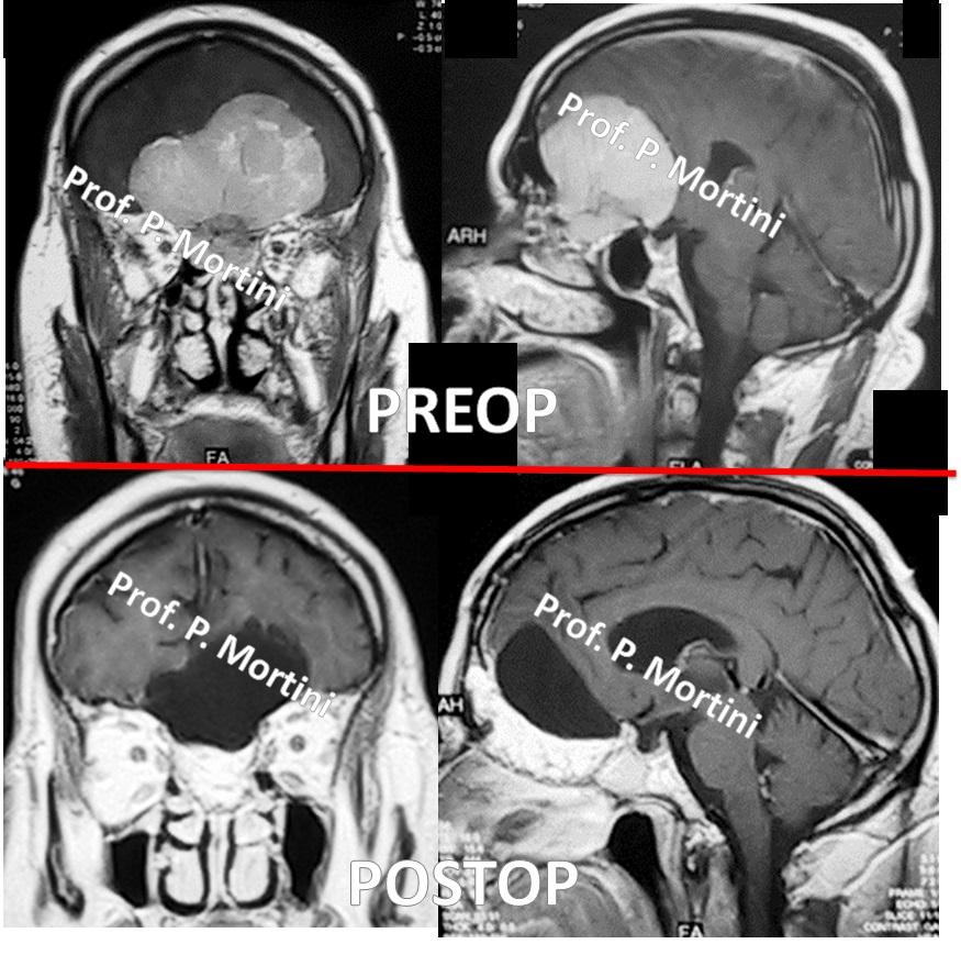meningiomaolfattorio