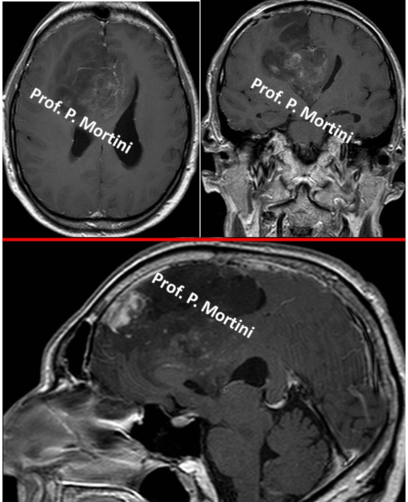 mixedglioma