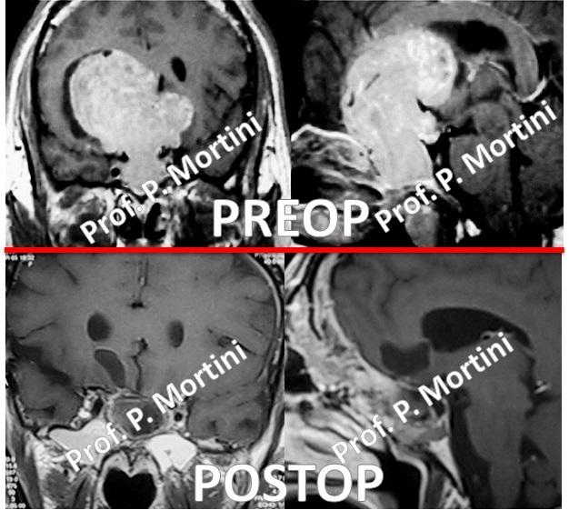 pituitary2