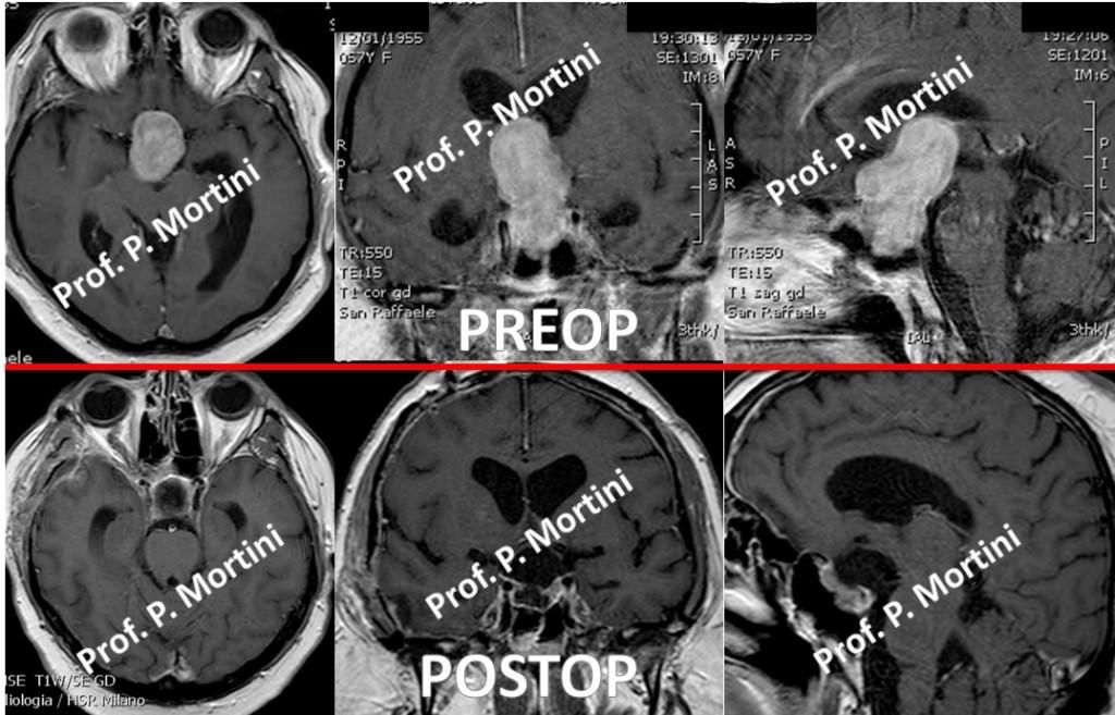 pituitary3