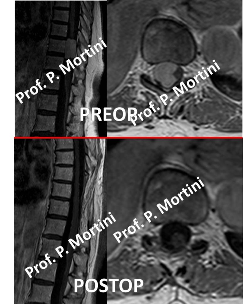 spinal-meningioma