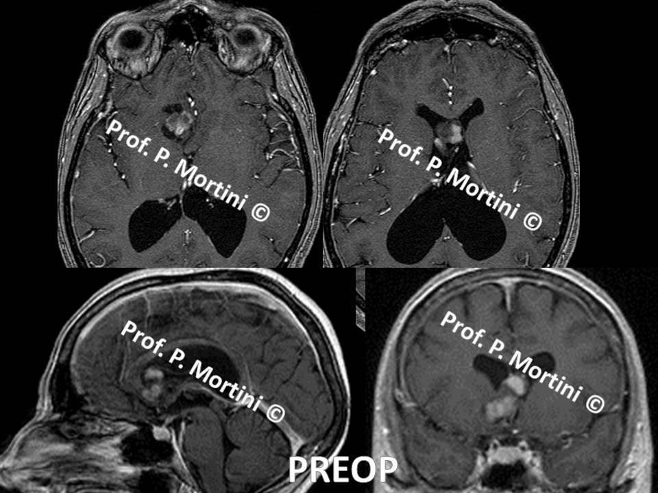 Brain tumor1