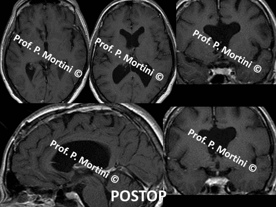 Brain tumor2