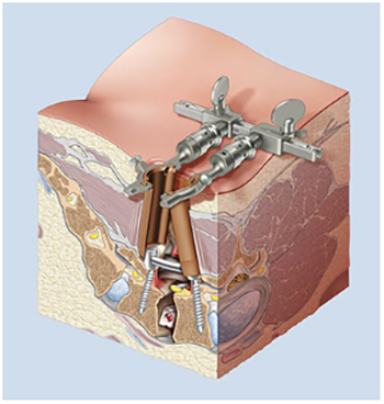Minimally-Invasive-Spine-Surgery-1